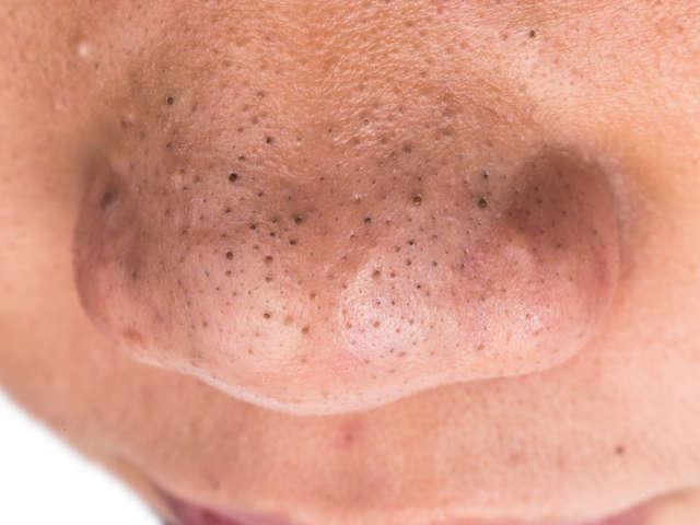 Wie Kann Man Mitesser Auf Der Nase Entfernen