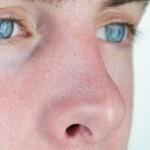 Mitesser Nase entfernen