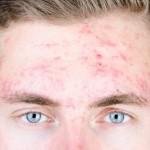 Was hilft gegen unreine Haut